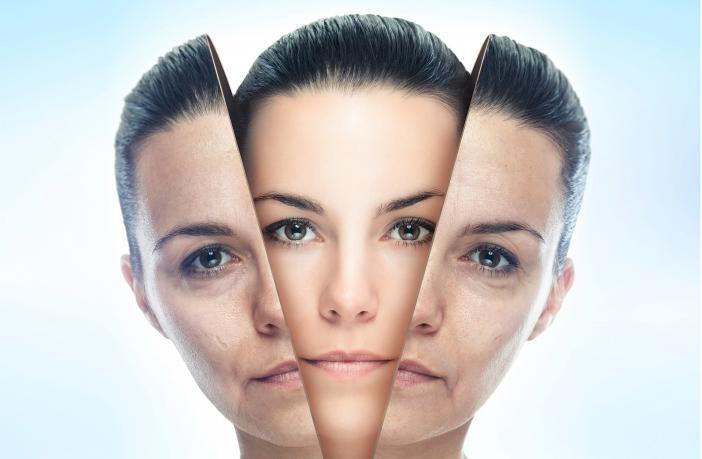 Skin Resurfacing vs. Chemical Peels