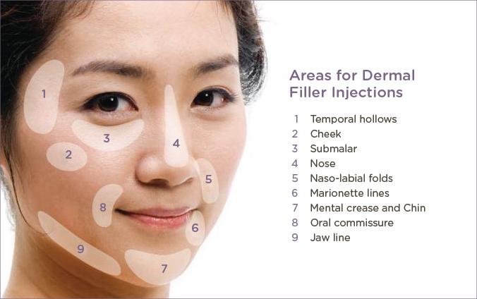 dermal filler injections