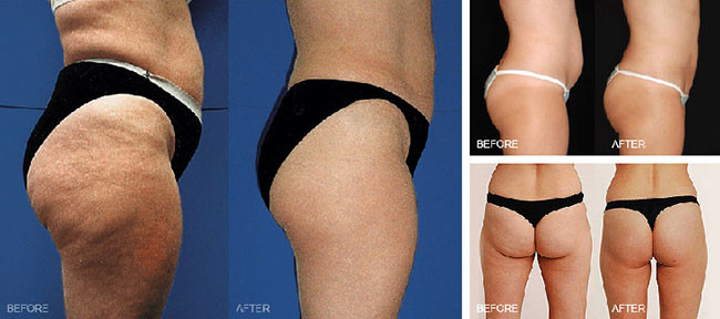 fat cavitation body contouring before after