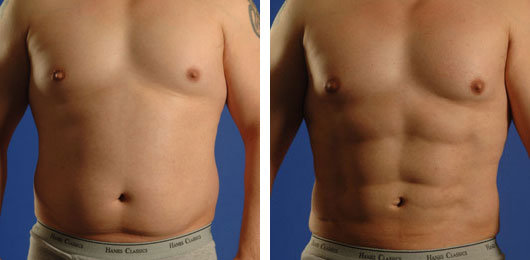 high definition vaser liposuction