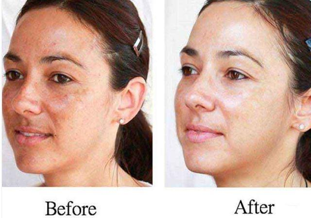 before after Non-invasive skin lightening