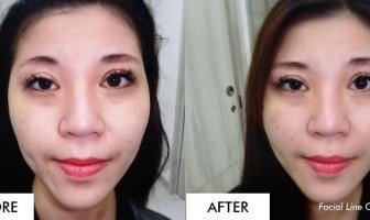 Face Threadlift & Silhouette Soft in Singapore • Asia Roxy No Down Time