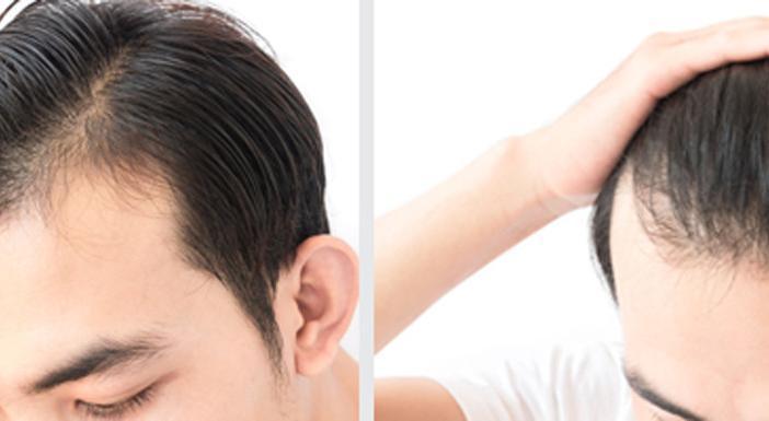 hair loss transplant