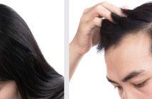 scalp-treament-singapore
