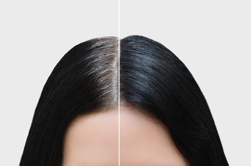 scalp treatments singapore