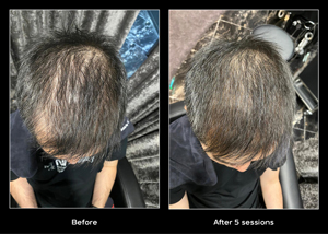papilla-haircare---SEP-before-affter3