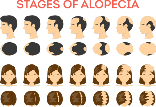 stages-of-hair-loss