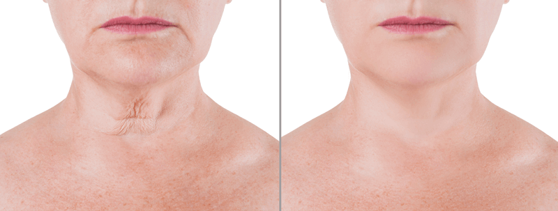 non-invasive-face-lift-before-after