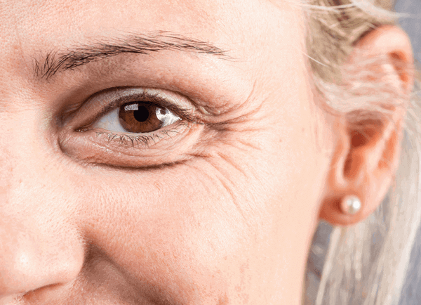 Non-Surgical Aesthetic Skin Treatments for Wrinkles in Singapore