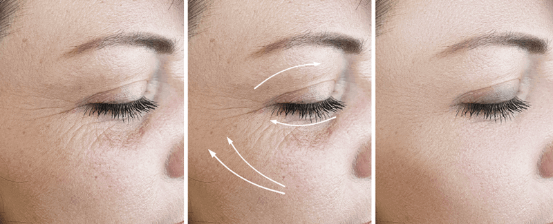 aesthetic treatment results for wrinkles