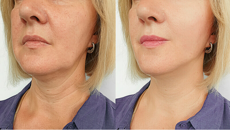 hifu facelift aftercare best results