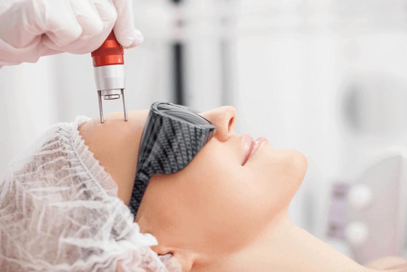 laser Aesthetic Skin Treatments for Wrinkles