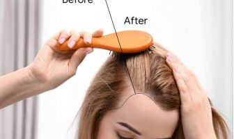hair loss cures