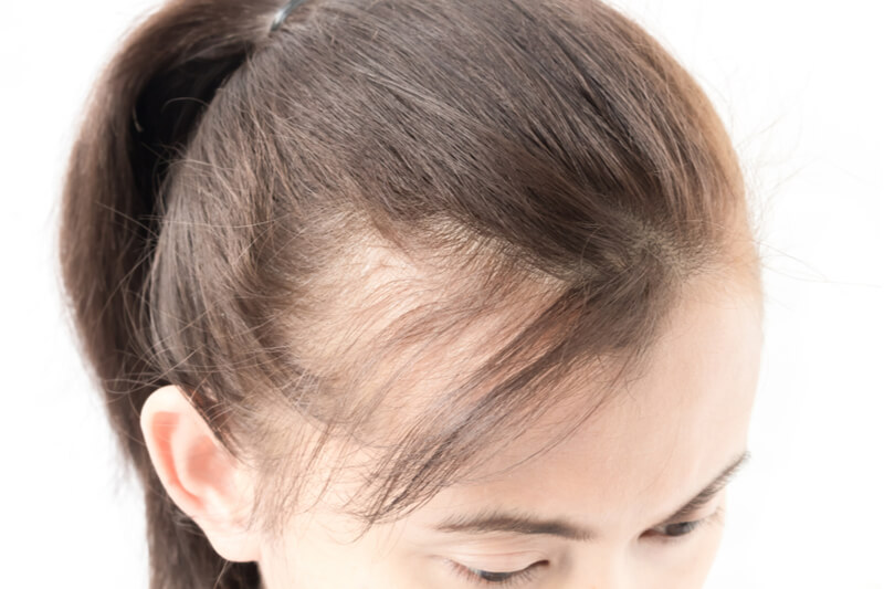 top hair loss cures remedies myths