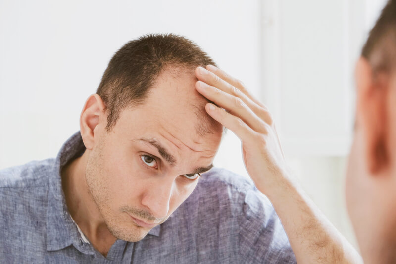 male patterned baldness androgenetic alopecia
