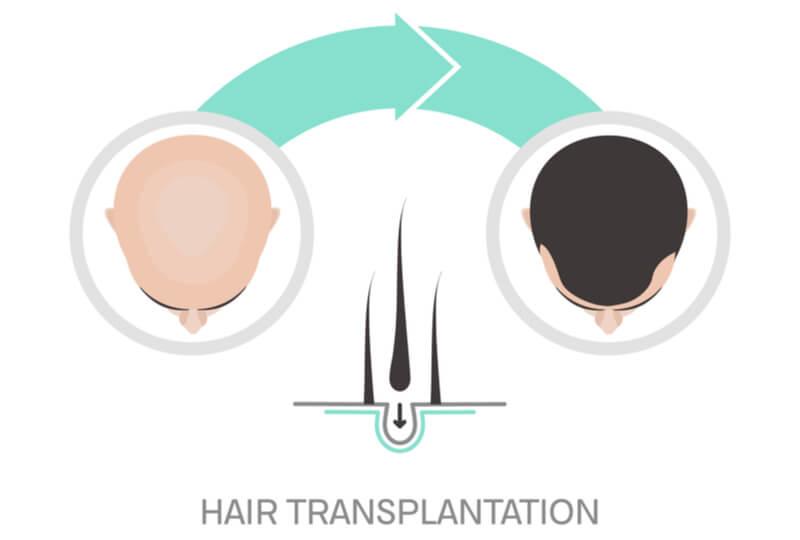 hair transplant for hair loss
