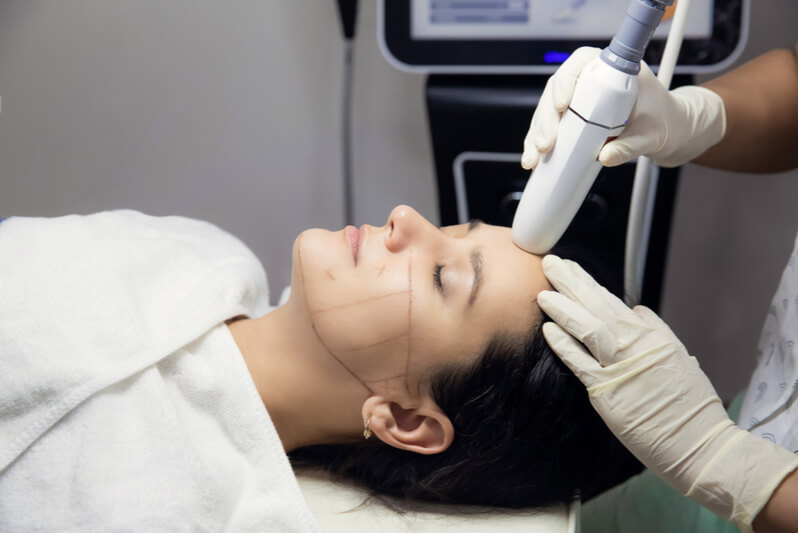 what is hifu facelift