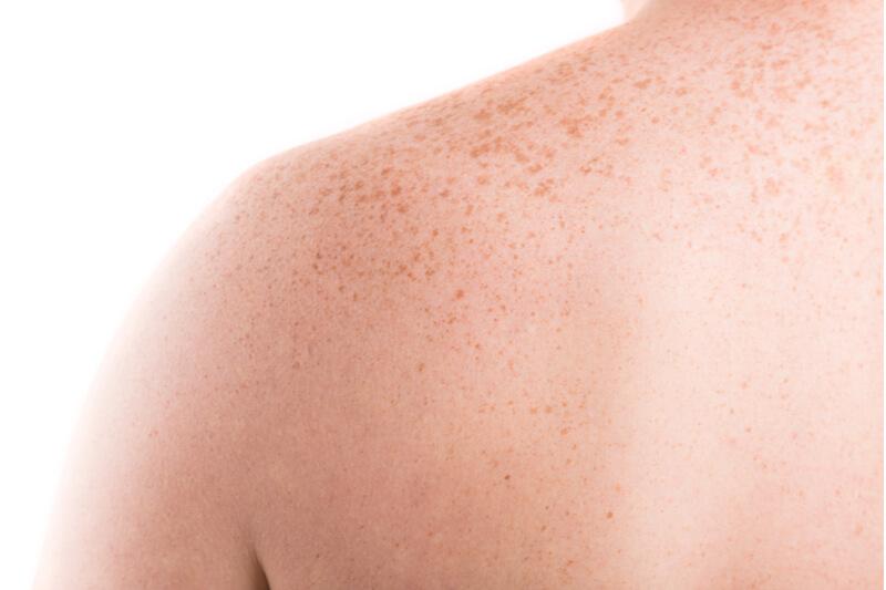 pigmentation sun damaged skin